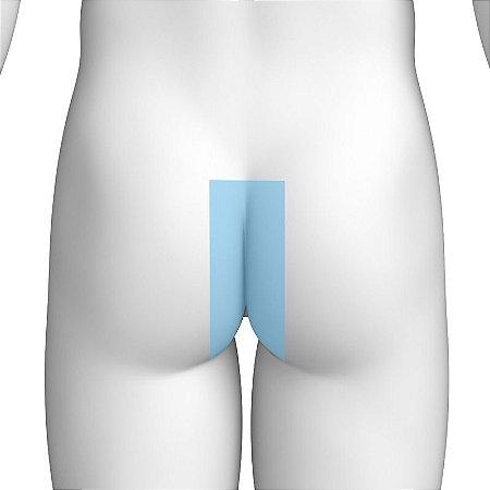 Depilação a Laser Glúteos Médio Masculino - Pacote Completo