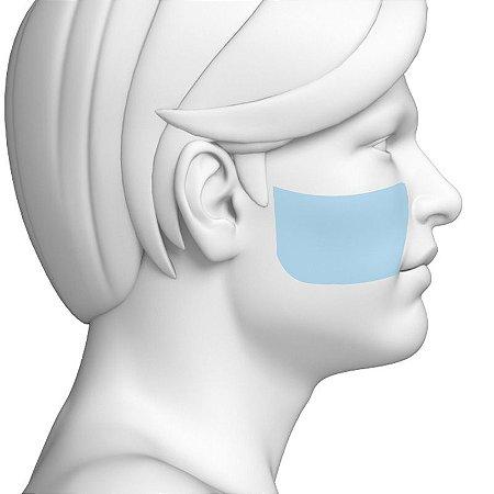 Depilação a Laser Maças do Rosto Masculino - Pacote Completo