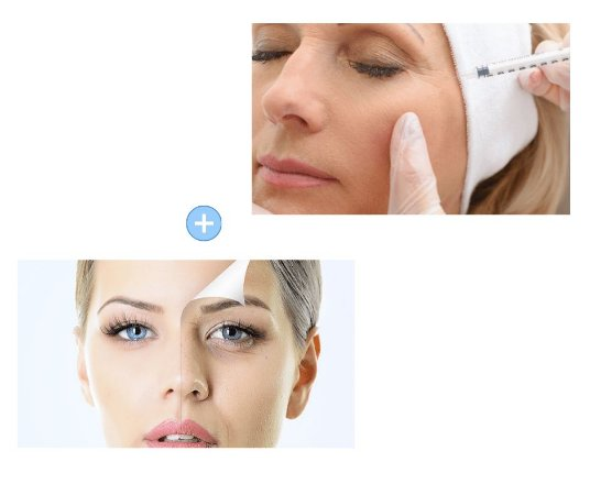 Combo Cinderela - Botox Completo + Seven Peel
