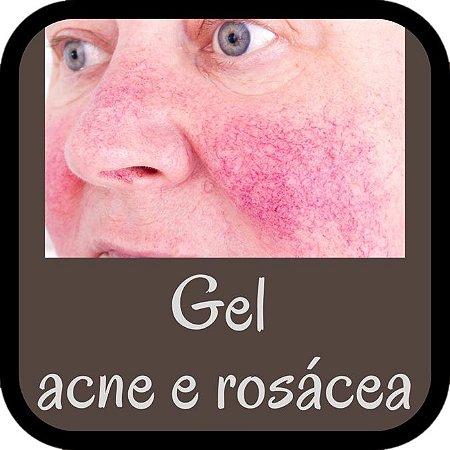 Gel para Tratamento de Acne Ativa e Rosácea (30g)
