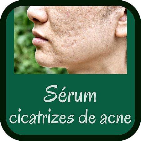 Sérum Fluído para Cicatrizes de Acne (uso no microagulhamento - 30g)