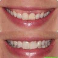 Botox - redução efetiva sorriso gengival - Exponha a gengiva na medida certa.
