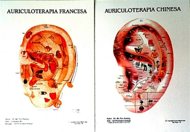 MAPA DE AURICULOTERAPIA CHINESA E FRANCESA