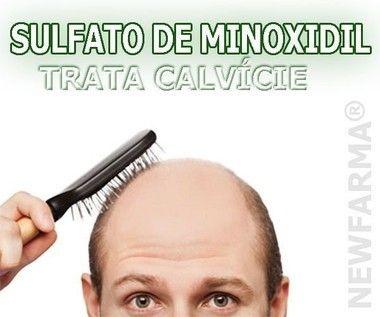 Minoxidil 5% trata alopecias e calvicies