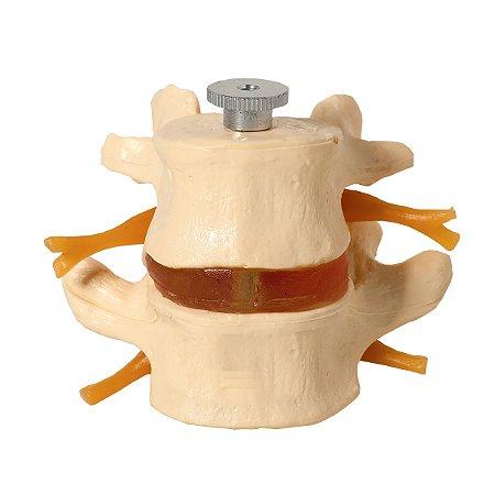 Vértebras Lombares 2 Peças TGD-0153-A