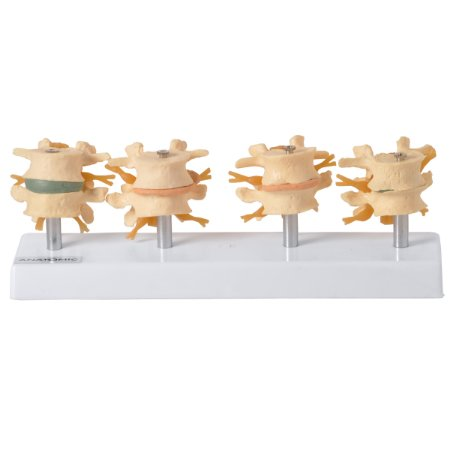 Demonstração de Degeneração das Vértebras em 4 fases TGD-0155-A