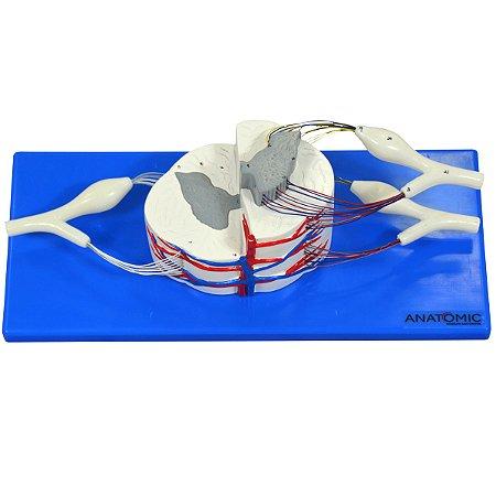 Medula Espinhal Ampliada TGD-0330-E