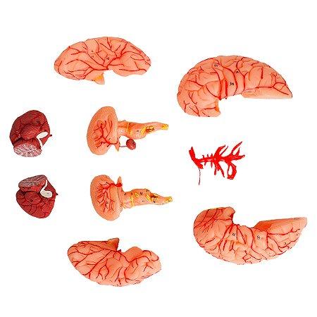 Cérebro com Artérias, em 9 Partes TZJ-0303-A