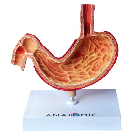 Estômago com Patologias TZJ-0326-P