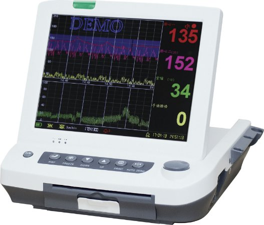 Monitor Cardiotocógrafo MF-9200 Plus