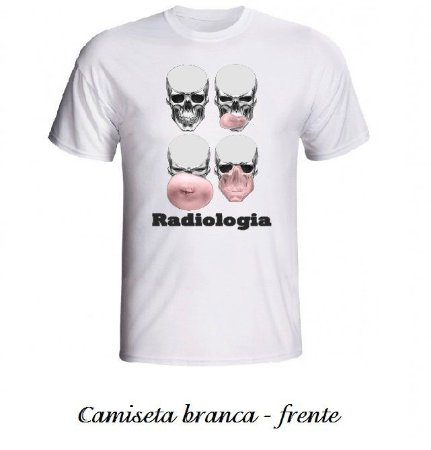 Radiologia Chiclete