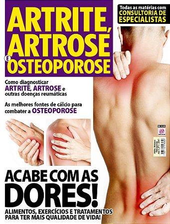 ARTRITE, ARTROSE E OSTEOPOROSE - EDIÇÃO 1 (2017)