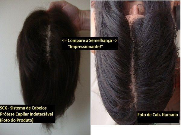 Prótese Capilar MicroTela