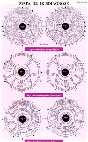 Mapa de Iridologia Condensado, Semelhanças e Diferenças (3x1)