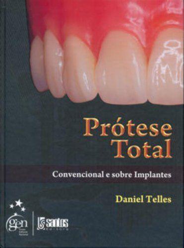 Prótese Total - Convencional e Sobre Implantes - AMAZON