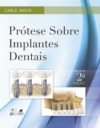 Prótese sobre Implantes Dentais - AMAZON