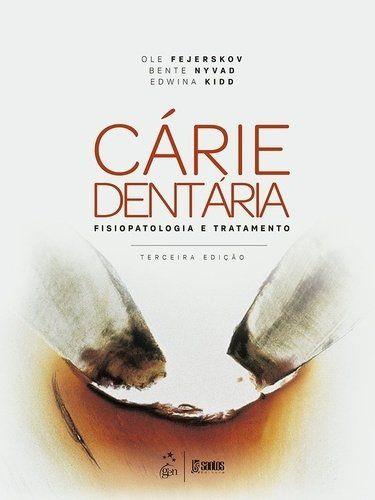 Cárie Dentária - Fisiopatologia e Tratamento