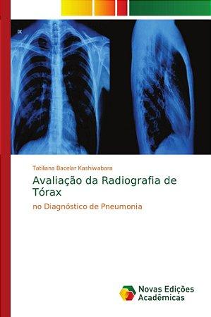 Avaliação da Radiografia de Tórax