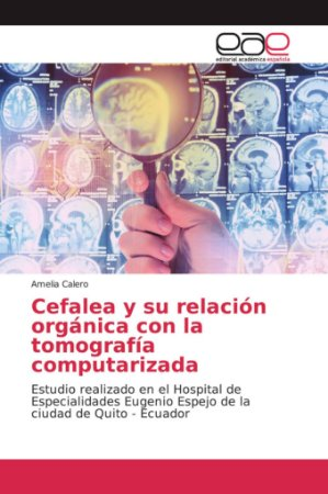 Cefalea y su relación orgánica con la tomografía computariza