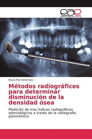 Métodos radiográficos para determinar disminución de la dens