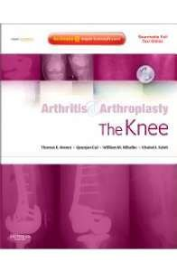 ARTHRITIS AND ARTHROPLASTY: THE KNEE