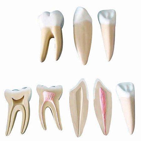 Modelo Anatômico Dentes Ampliados - Canino, Incisivo e Molar