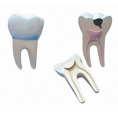 Modelo Anatômico Dente Molar Ampliado - Saudável e com Cáries