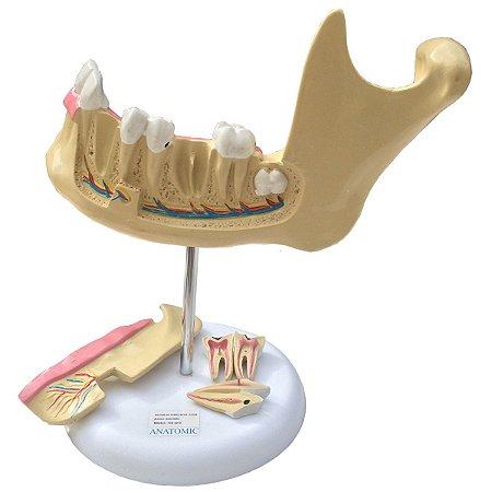 Modelo Anatômico Anatomia do Dente com 6 Partes