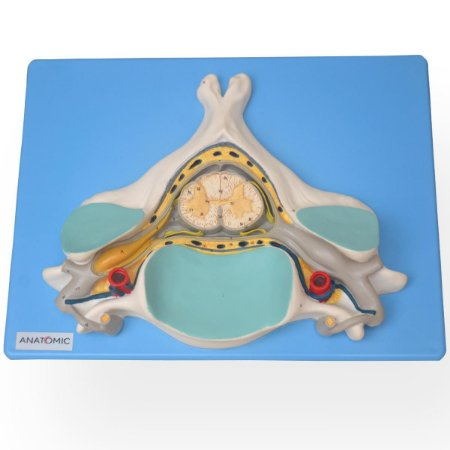 Quinta Vertebra Cervical com Medula Espinhal e Nervos