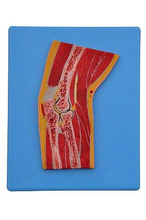 Modelo Anatômico Secção Mediana do Cotovelo