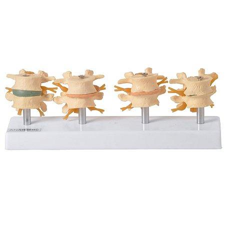 Vértebras Demonstração da Degeneração em 4 fases
