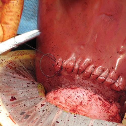 Simulador obstétrico para incisões em cesárias e habilidades de sutura - C-Celia –  3B Scientific
