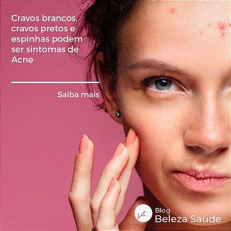 Fórmula Oral para Tratamento da Acne
