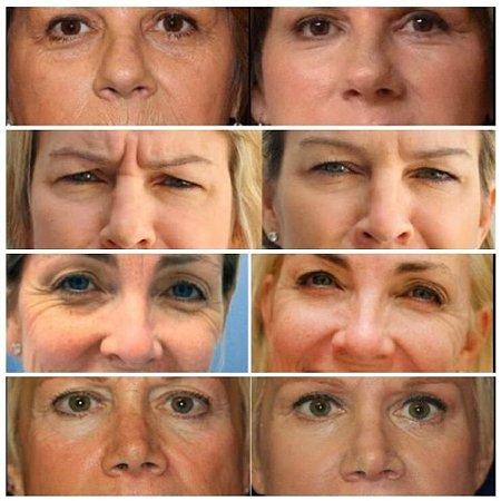 Retinol + Vitamina E +Vitamina A + Acido Hialurônico Creme Facial Firmador Rejuvenescedor 50ml Melao