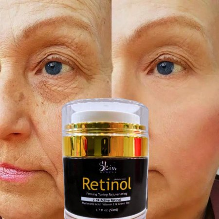 Retinol 2,5% Hidratante Facial Anti Idade 50ml Skin Health