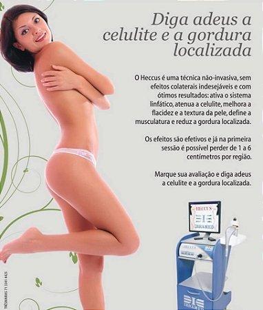 1, 4 ou 8 sessões de Heccus corporal (Gordura Localizada/Celulite) a partir de R$40,00!