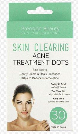 Patches para acne com 30 unidades - Salicílico - Tea Tree - Aloe Vera