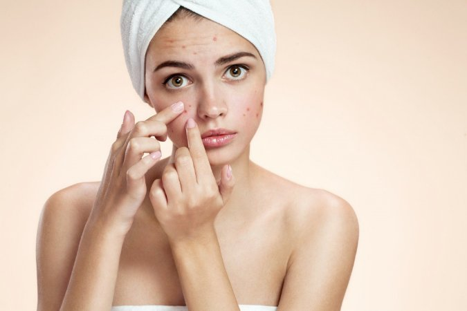 Peeling Acne Profissional