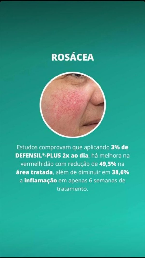Rosácea Gel Creme - Physavie 2%, Telangyn 2%, Defensil Plus 3%, Aveia Coloidal 5% 30g