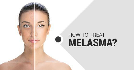 Tratamento para Melasma - Kit completo com ozonioterapia