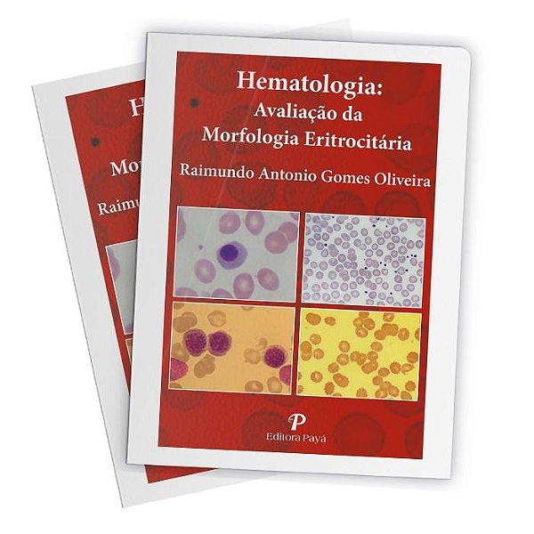 Hematologia: Avaliação da Morfologia Eritrocitária (Pranchas)