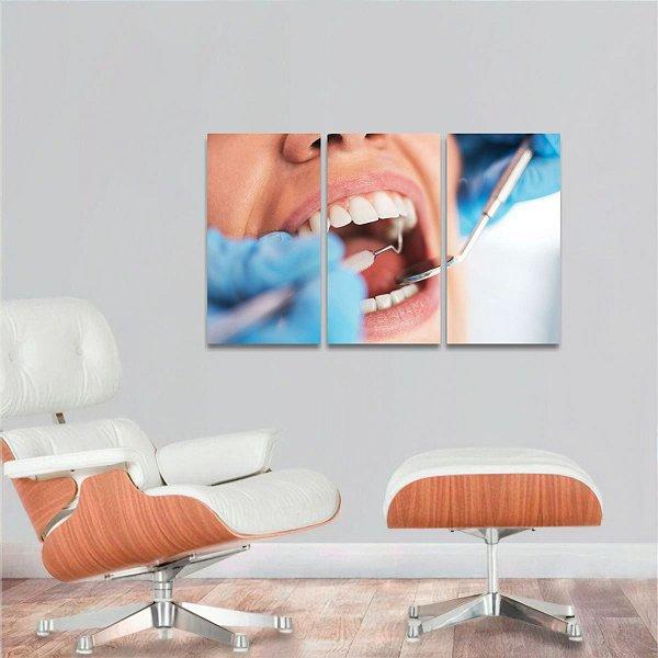 Quadro Consultório Dentista Conjunto 3 Peças decorativo