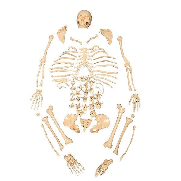 Esqueleto Padrão Tamanho Natural Desarticulado - TGD-0101-C