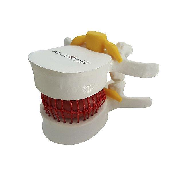 Modelo Funcional do Prolapso Intervertebral - TGD-0153-P