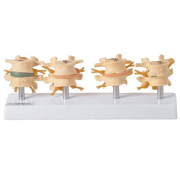 Demonstração de Degeneração das Vértebras em 4 Fases