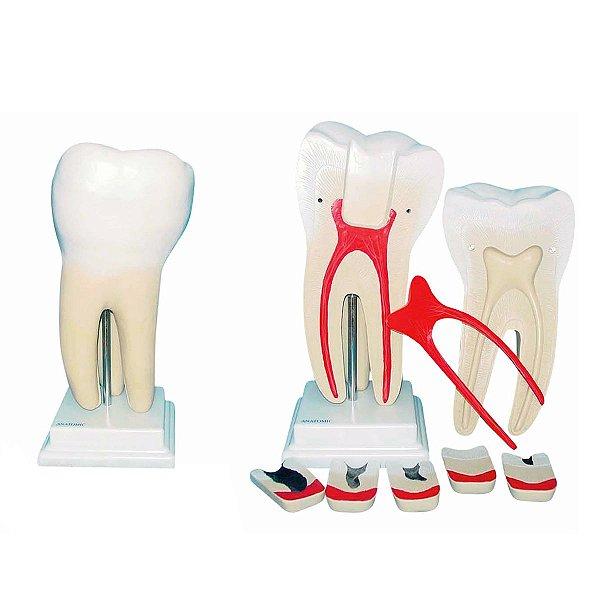 Dente Molar Ampliado Evolução Cárie 8 Partes - TGD-0311-G
