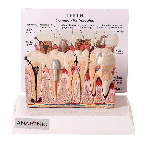 Patologia Dentária e Placa Explicativa 2 partes - TGD-0311-J