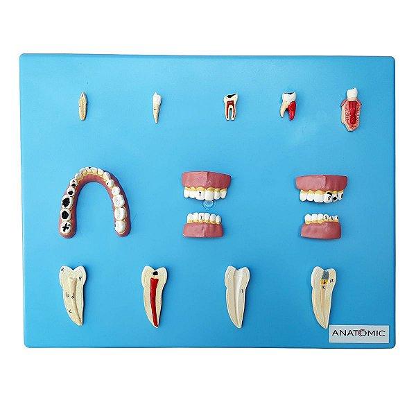Patologia Dentária em 12 peças - TZJ-0311-P