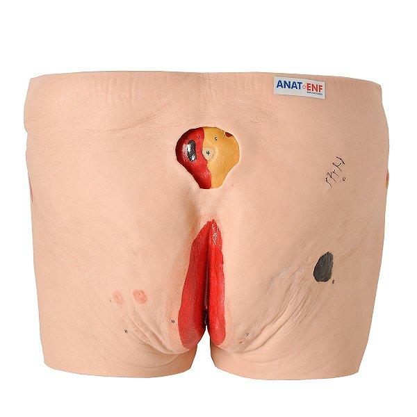 Modelo de Úlcera por Pressão - TZJ-4009-C