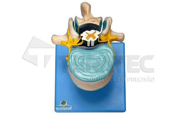 Vértebra Cervical com Cordão Espinhal e Nervo Cauda Equina